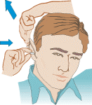 Image: Pull the top of your ear up and back to slide the earplug in