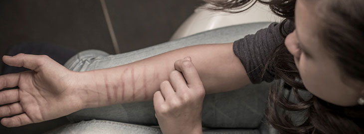 Image: Health blog - The truth about self harm