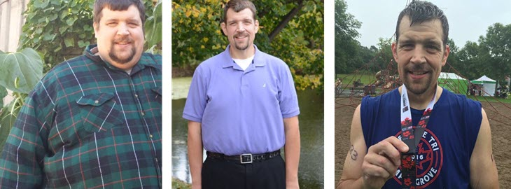 Bariatric Surgery In Minnesota How One Patient Was Able To Lose